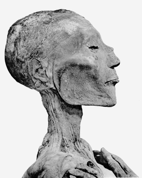 Ramses_V_mummy_head